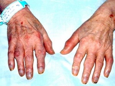 vai trò của nano cucurmin trong điều trị bệnh tiểu đường