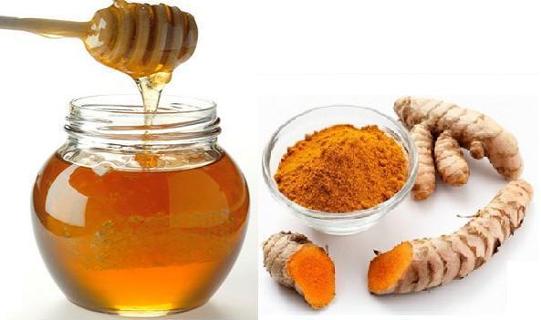 Bí quyết dân dã dành cho các người bị chứng bệnh bao tử từ Nghệ & Mật ong rất tốt